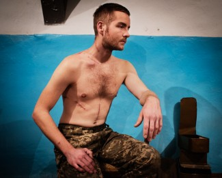 SHASTIA- Donbass- Dec. 13th 2014 -12:00PM- Dimitri Lavrenchuk (26) once in marketing in Kiev now a soldier at the Pro-ukrainian Aidar Battalion, displays his wounds received from an artillery explosion during a battle with pro-russian forces.