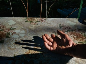 MARINKA- May 28, 2017- 5H38 PM The hand of Vladimir Nilolayevich, 62, wounded on  February 15th 2015 in his garden by the explosion of a shell. He lives in the street Prokofiev formerly Lenin street. The street is located in the front line.